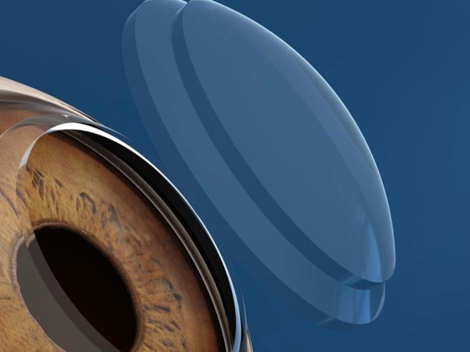 Keratoplasty Surgery