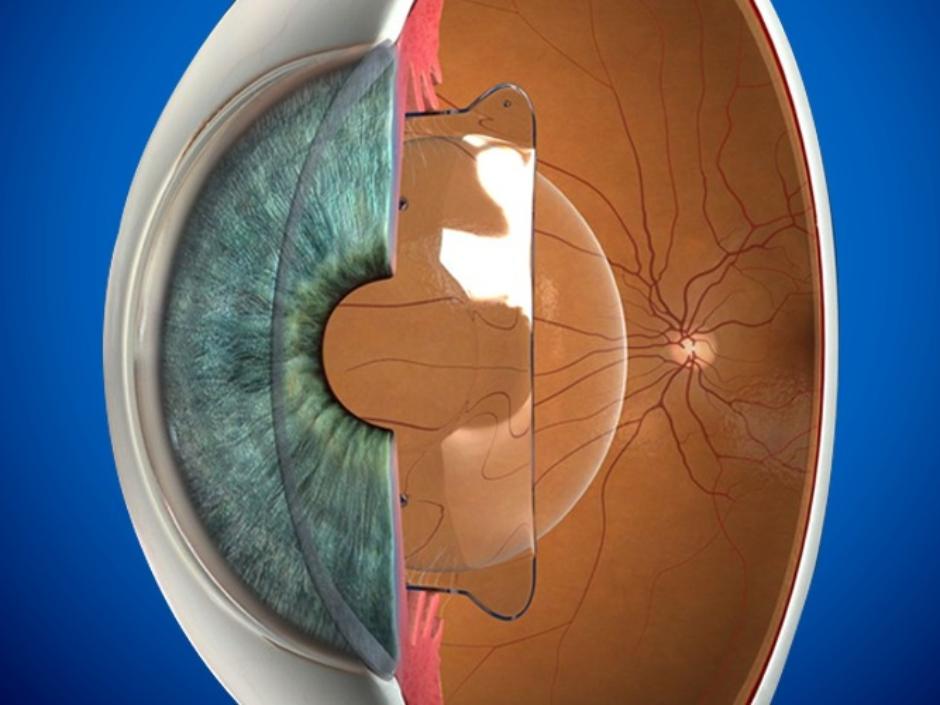 Moatassem Eye Clinic (2)